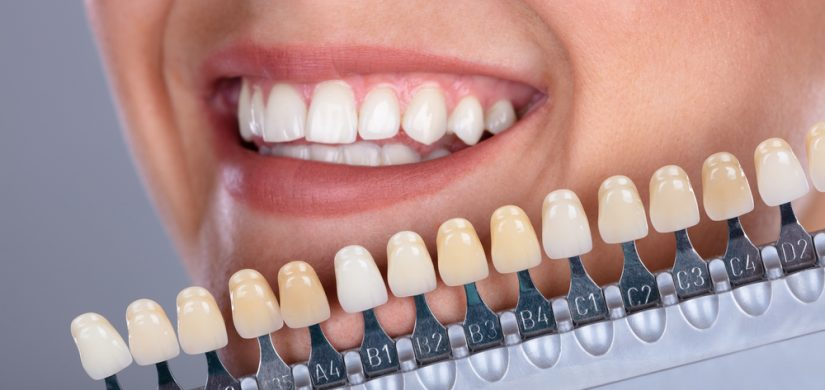 Matching Shade Of The Implant Teeth