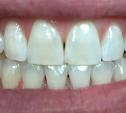 teeth-whitening-after-pt1