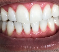teeth-whitening-after-pt2