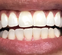 teeth-whitening-after-pt3