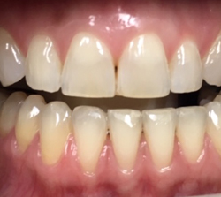 teeth-whitening-before-pt1
