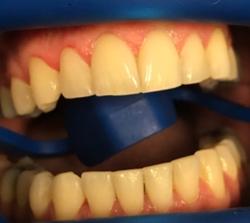 teeth-whitening-before-pt2