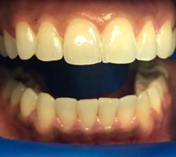 teeth-whitening-before-pt3