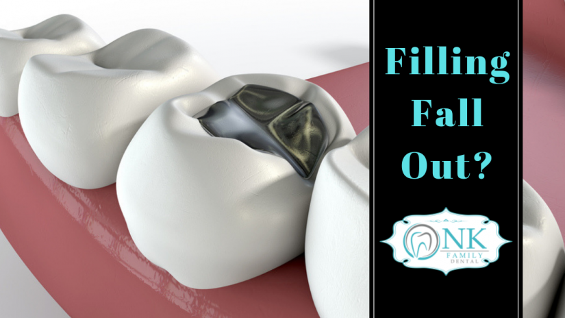 Lost a filling, Filling fell out, when a tooth filling falls out, Chicago emergency dentist