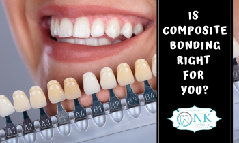 dental bonding, composite bonding, Chicago dentist, Chicago tooth implants