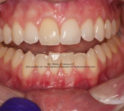 NK Dental Gum Recession After
