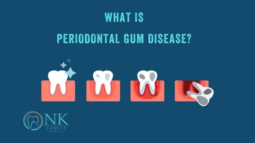 What is periodontal gum disease