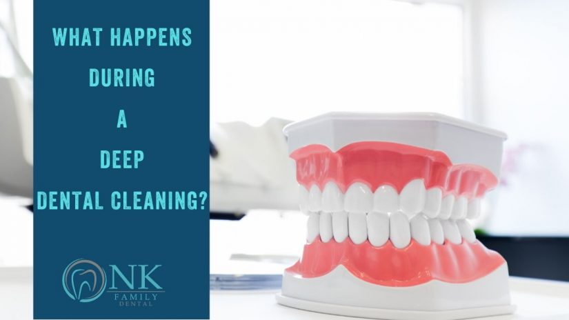 Deep Dental Cleaning