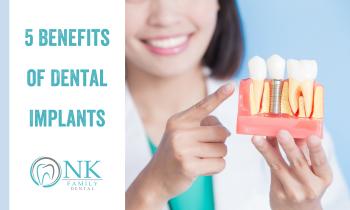 Benefits of Dental Implants