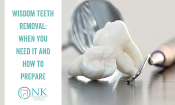 Wisdom Teeth Removal: When You Need It and How to Prepare