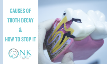 Causes of Tooth Decay & How to Stop It