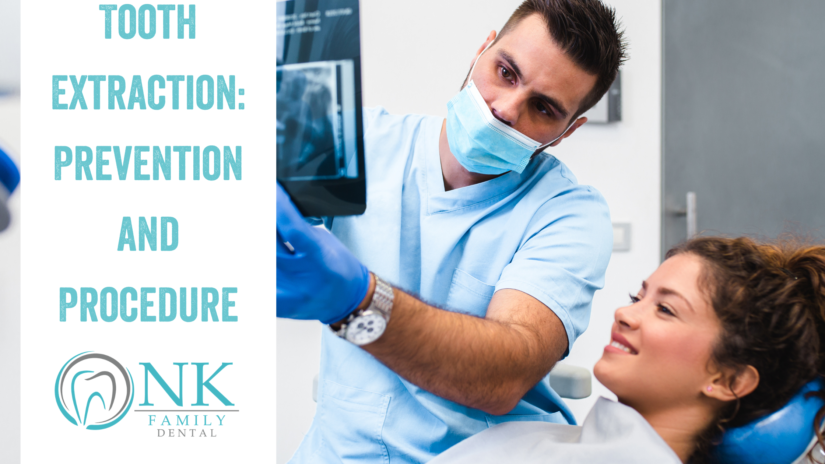 Tooth Extraction: Procedure and Prevention