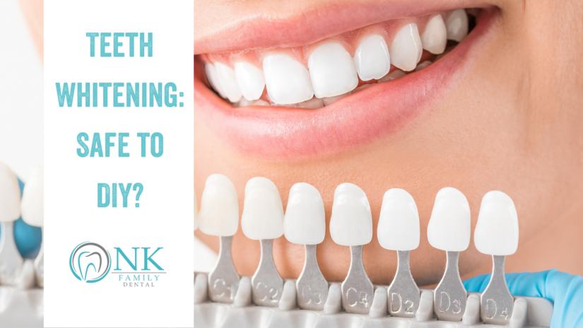Teeth Whitening: Is it Safe to DIY?